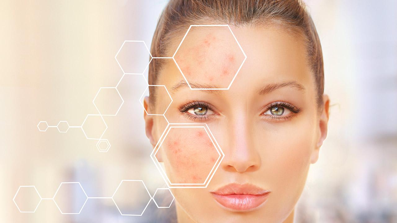 acne grave